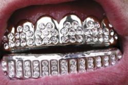 The Infamous Diamond Grill